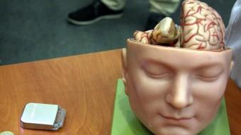 La intervenció consta de la implantació de dos electrodes al cervell i un marcapassos per controlar l'estimulació elèctrica que s'hi desenvolupa Foto:ACN